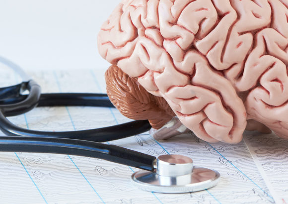 Gesundheit beginnt im Kopf